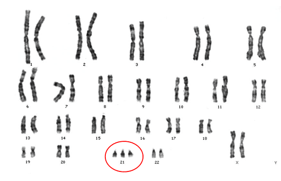 染色体 核型 ダウン症候群